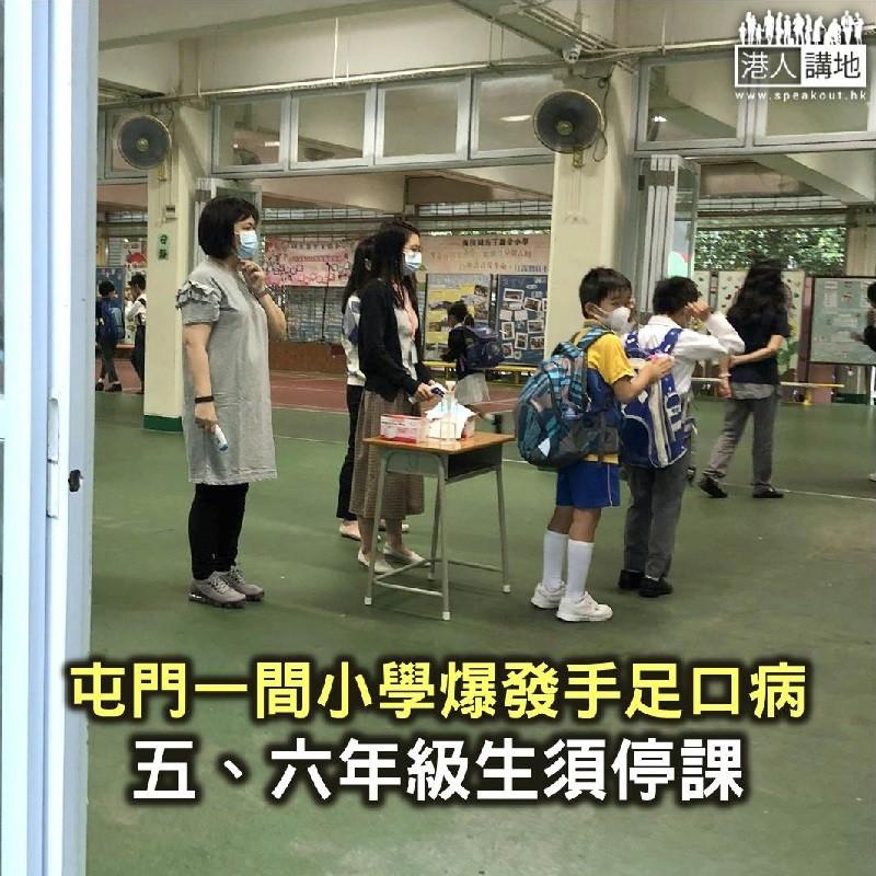 【焦點新聞】屯門一間小學爆發手足口病 五六年級停課