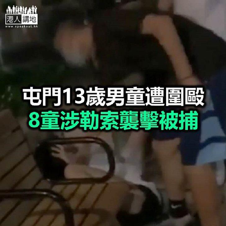 【焦點新聞】屯門男童遭童黨圍毆受傷 警方先後拘8人